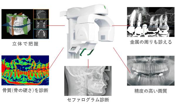 CT・パノラマレントゲン