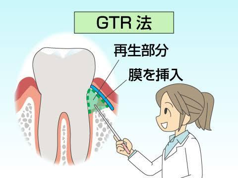 歯周外科治療、歯周組織再生療法